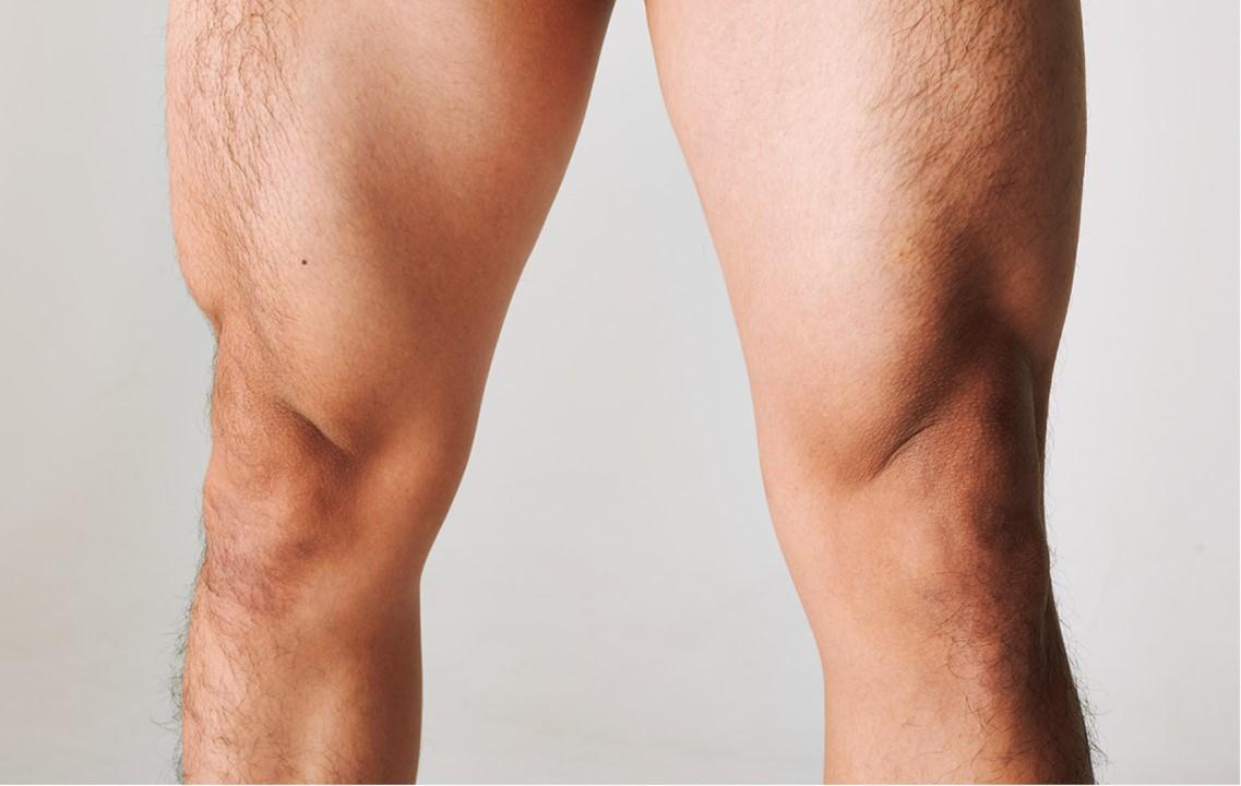 野田クリスタルの筋肉、大腿四頭筋