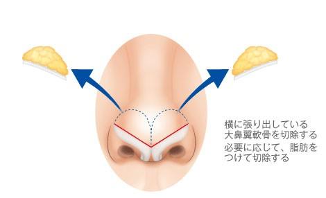 鼻筋の整形