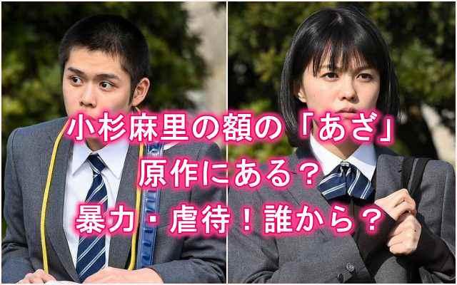 ドラマ「ドラゴン桜」小杉麻里の額、おでこの「あざ」は原作にある?原因は暴力、虐待